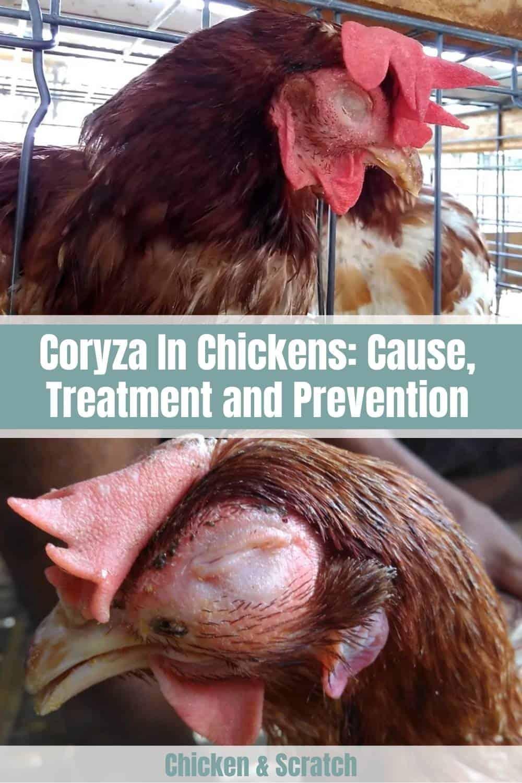 coryzal symptoms